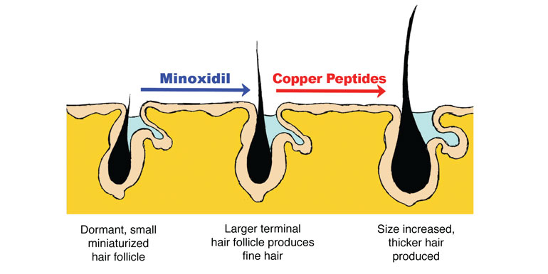 Minoxidil and Copper Peptide Study